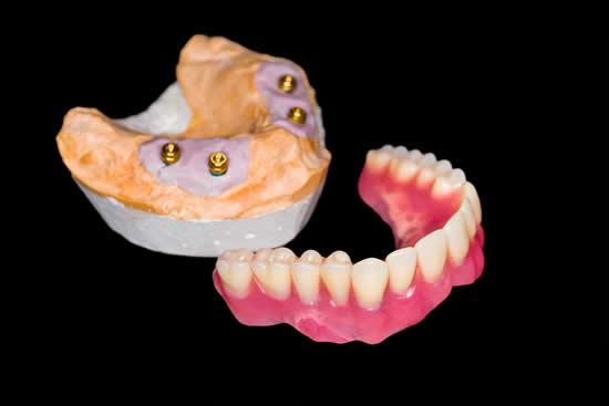 Implant-Retained-Denture