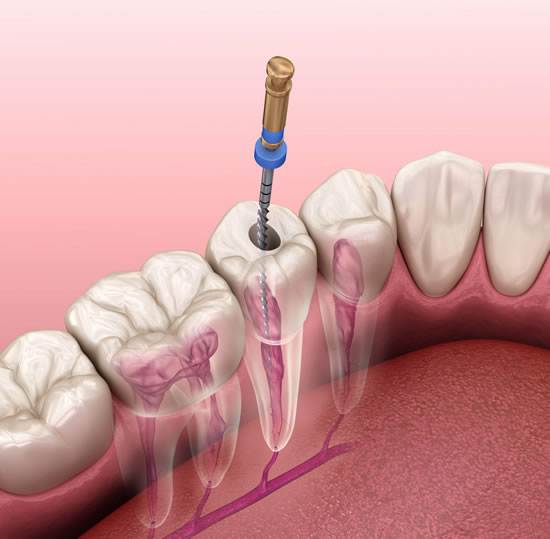 Root Canal Therapy - North Point Dental Associates